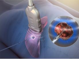 Radio Frequency Ablation cancer treatment