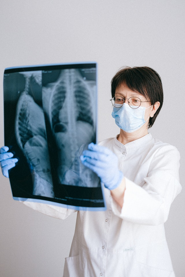 Doctor studying an X-ray of lung cancer