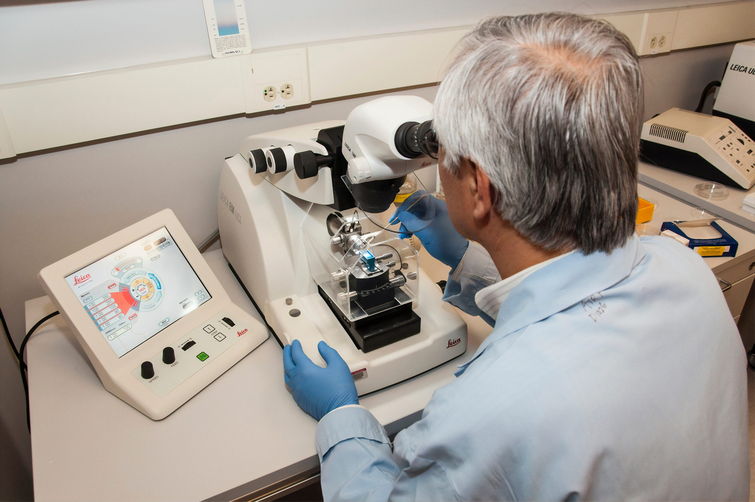 Doctor finding traces of pancreatic cancer in microscope